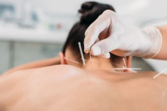 Acupunctura: Prezentare generala