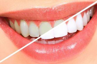 Cum se obtine albirea dentara?