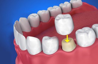 Ce sunt coroanele dentare?