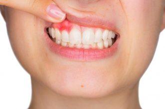 Tot ce trebuie sa stim despre gingivita