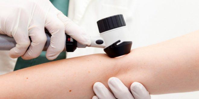 Ce trebuie sa stim despre dermatoscopie?