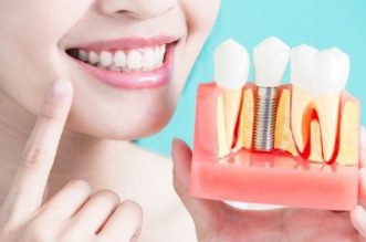 Ce sunt implanturile dentare?